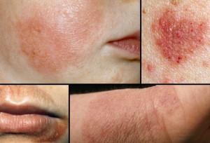 Diabetes Causes Eczema And Dry Skin
