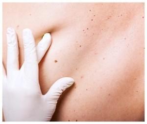 Skin Cancer Solution